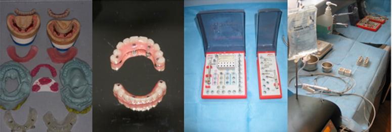 Same Day Teeth | Dental Implants Evesham | Dentist Evesham