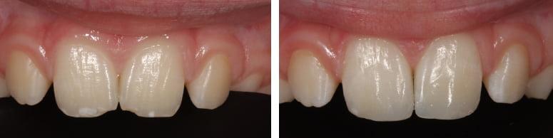 toothwear1