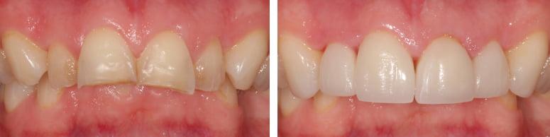 toothwear2