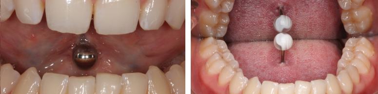 toothwear4