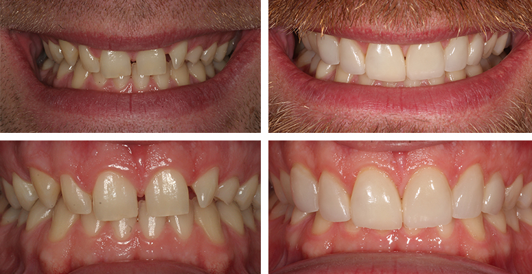 Porcelain Veneers | Dentist Evesham | Cosmetic Dentist